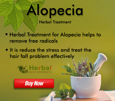 Herbal Treatment for Alopecia may help restore healthy hair growth. Herbal Remedies for Alopecia ...