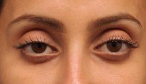 Sunken Eyes – How To Get Rid Of Sunken Eyes – Glowy Dowy