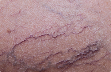 Spider Vein Treatment Near Me