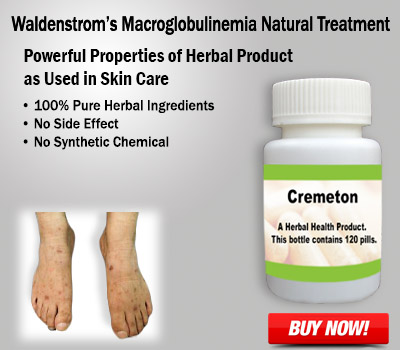 Natural Remedies for Waldenstrom's Macroglobulinemia Risk Factors and Treatment