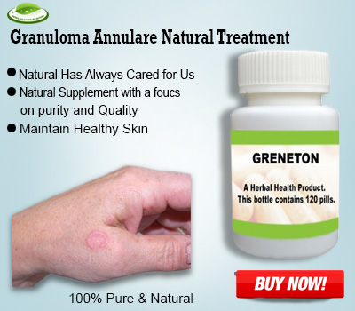 Top 7 Natural Remedies for Granuloma Annulare Treat Naturally – HerbalSupplements's blog